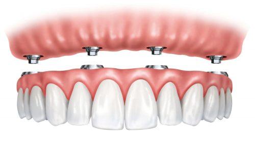2 вида протези, които ще върнат усмивката и увереността Ви!